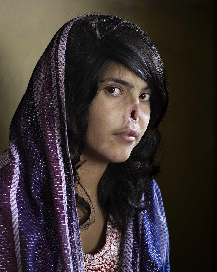 Na fotografii widzimy portret młodej kobiety wykonany z profilu. Dziewczyna ma ciemne, długie włosy, fioletową chustę przykrywająca głowę oraz ramiona. Oczy kobiety skierowane są wprost w obiektyw fotografa. Postać nie ma fragmentu nosa. Został on obcięty przez męża dziewczyny. Była to kara za ucieczkę z domu.